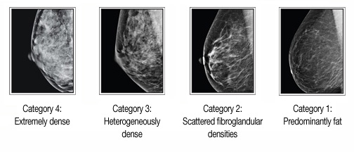 Breast cancer fibroglandular densities and calcifications